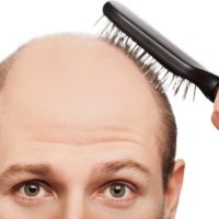 Calvitie: comment faire pour éviter de perdre ses cheveux?