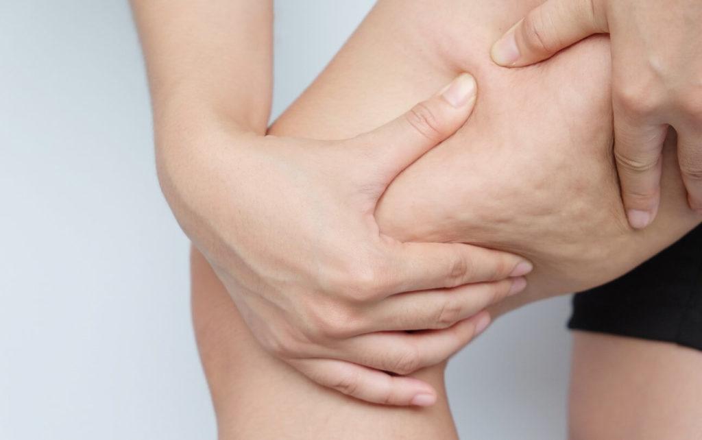 Comment enlever la cellulite naturellement?