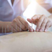 Comment fonctionne l'acupuncturesur le corps?