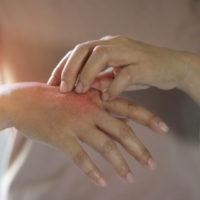 Eczema: comment s'en débarrasser naturellement?