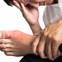 Goutte: comment soulager la douleur naturellement?
