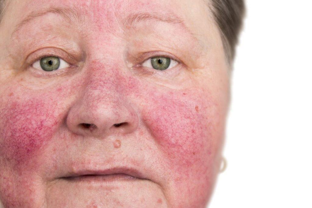 Stress et plaque rouge sur le visage