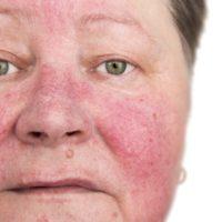 Stress et plaque rouge sur le visage: que faire?